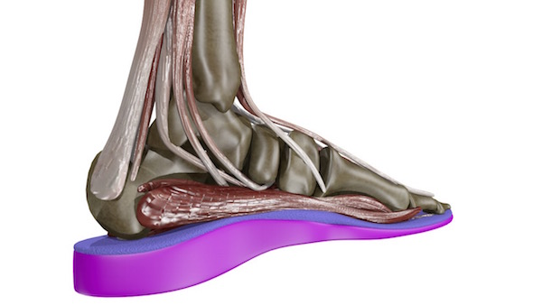 US Orthotic Center, your Orthotics come with 6 complimentary adjustmentsto be done within the first 6 months. Adjustments in most cases are done during your appointment.