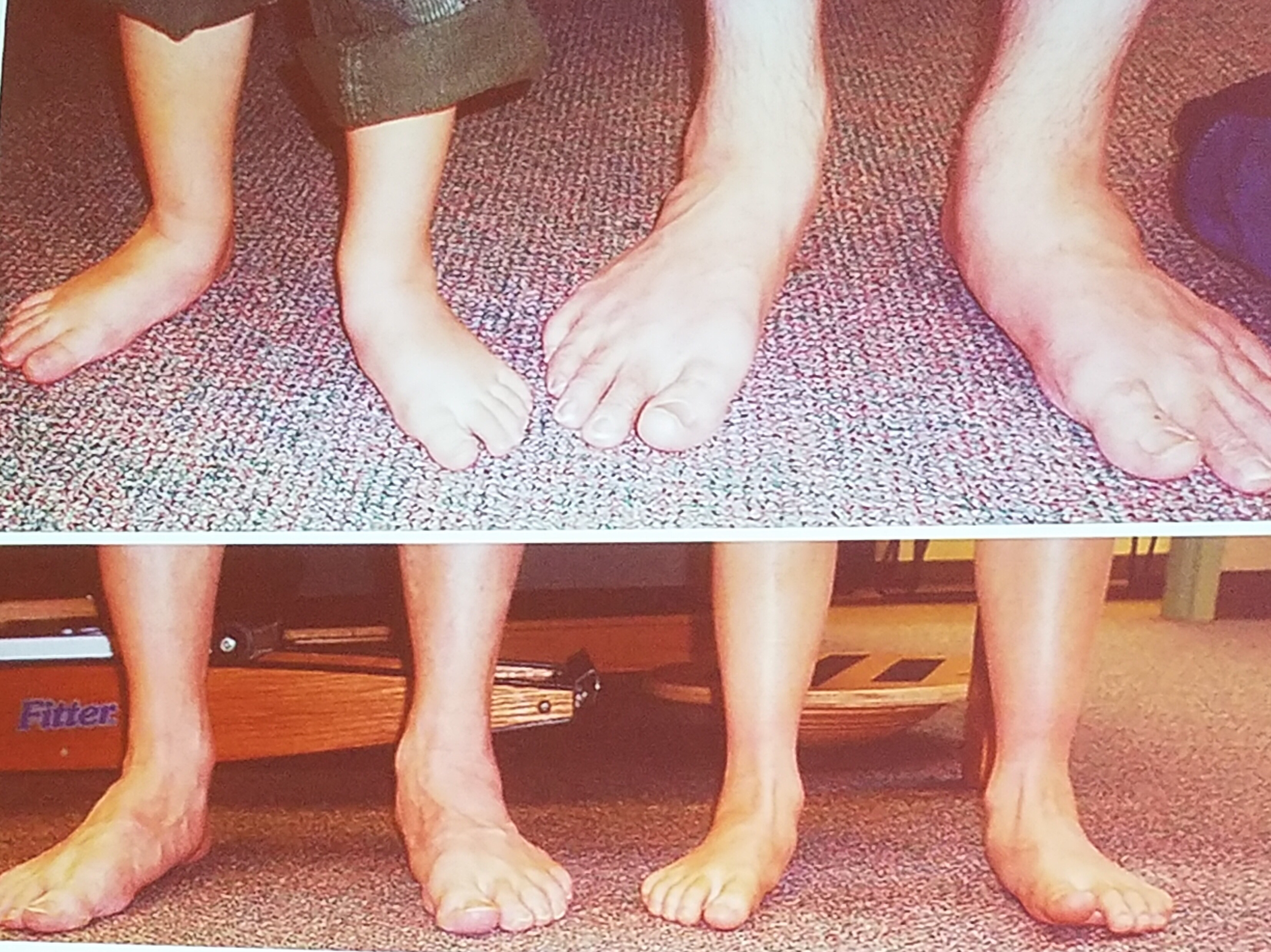 The US Orthotic Center also makes insoles for children