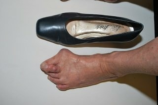 Us orthotic center top quality orthotics and orthotic insoles to ease bunions