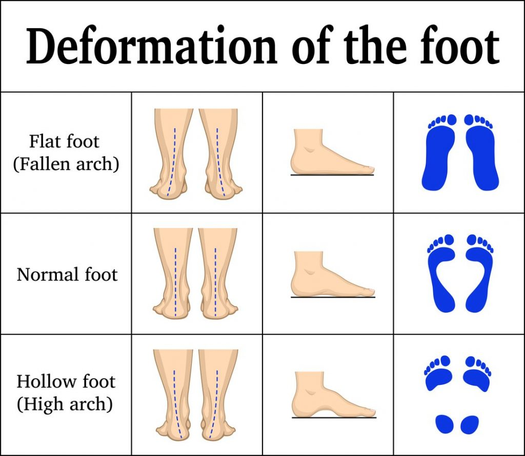 Us orthotic center custom insoles for flat feet
